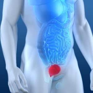 Câncer de bexiga, sinais e sintomas e prevenção